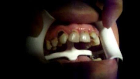 Curso Auxiliar de Odontología con Prácticas