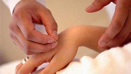 Curso Acropuntura y Manopuntura